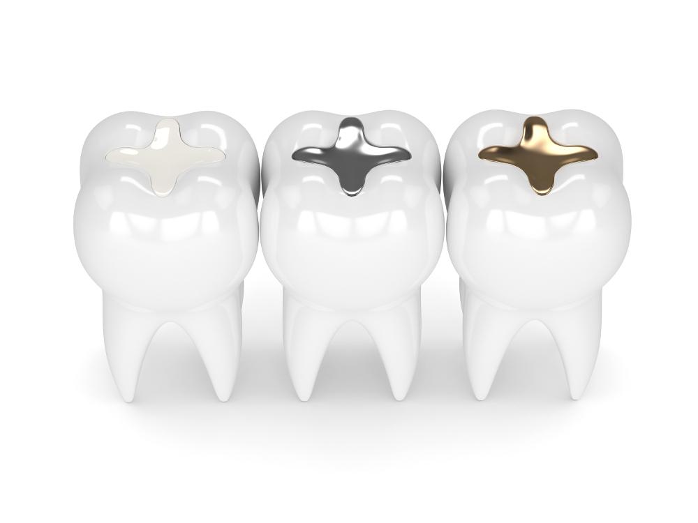 Füllungstherapien in der Zahnarztpraxis Germeshausen